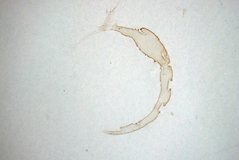 Coffee stain, Claire Wilson blog